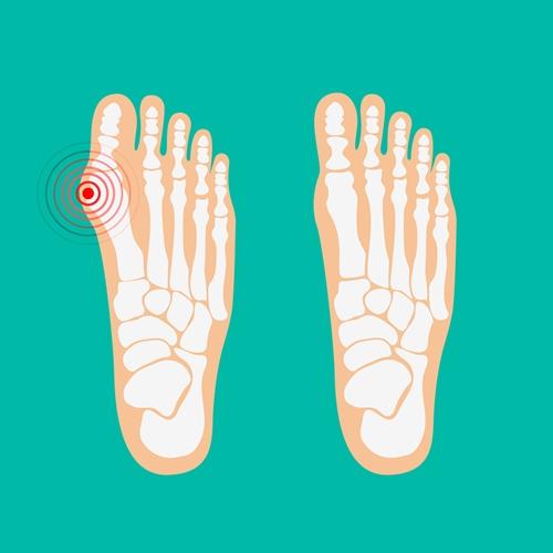 Zdravé versus nemocné chodidlo